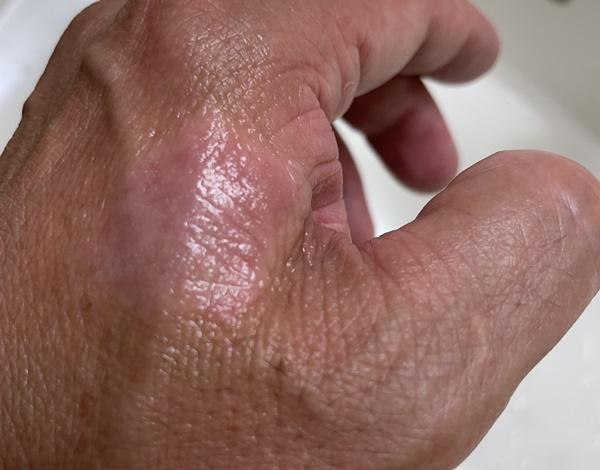 毛穴スプレークレンズを手の甲の痒みが出る部分にスプレーした画像